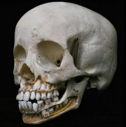 Knochen Kopf
